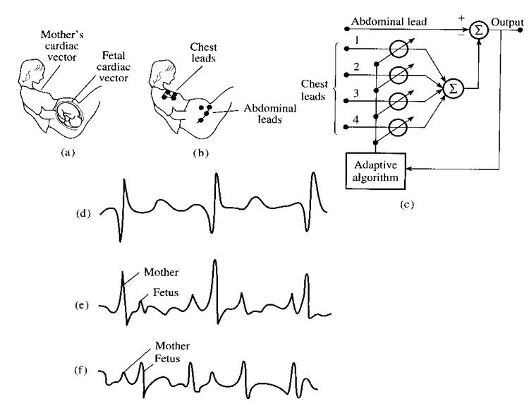 ECG Scans
